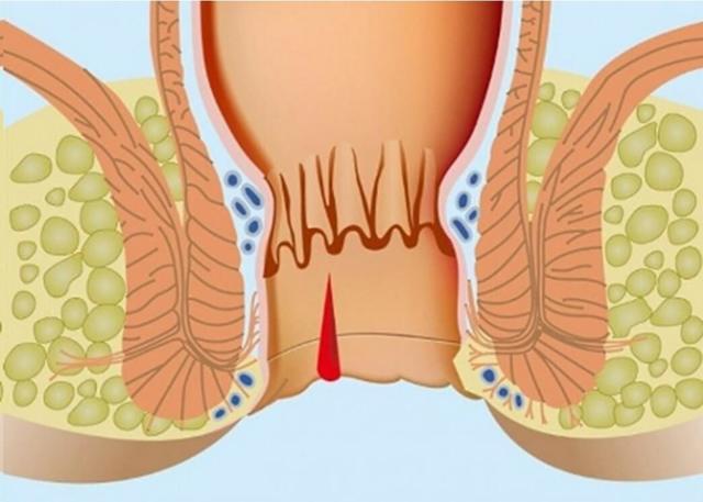 Кровь в заднем проходе: вероятные причины, диагностика, лечение