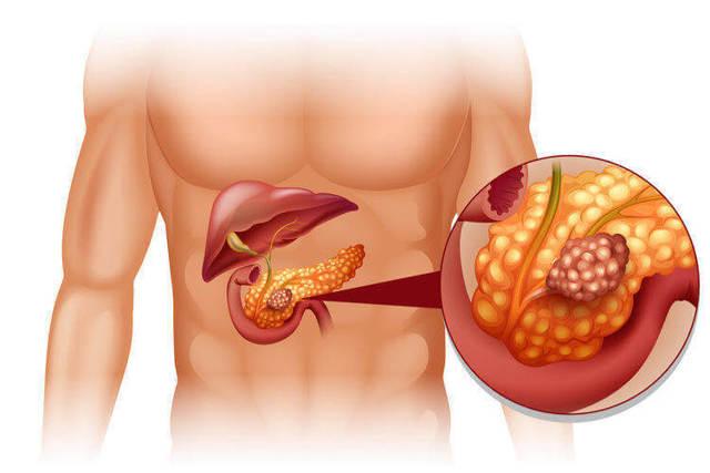Первые симптомы рака поджелудочной железы: признаки и диагностика