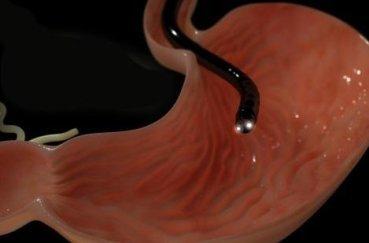 Как легче перенести ФГДС и пройти процедуру без проблем: учимся глотать кишку так, чтобы проверить желудок просто, больно ли делать и как пережить введение трубки?