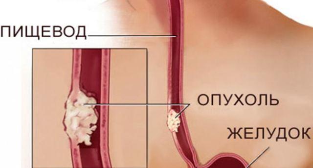 Рак пищевода — симптомы перед смертью