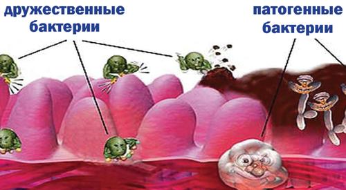 Что принимать после антибиотиков для восстановления микрофлоры