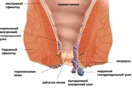 Боль в прямой кишке болезни симптомы диагностика лечение профилактика рекомендации