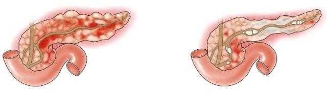 Шиповник при панкреатите - польза и противопоказания