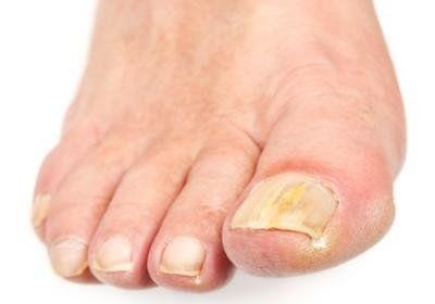 Медный купорос от грибка ногтей на ногах - рецепты и отзывы