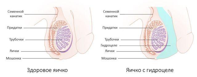 Водянка у мужчин (гидроцеле) – симптомы и лечение