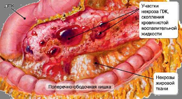 Геморрагический панкреонекроз