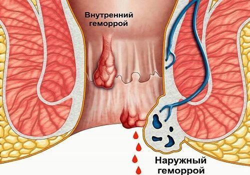 Свечи от геморроя, недорогие и эффективные при кровотечении: список лучших кровоостанавливающих суппозиториев, противовоспалительные геморроидальные средства