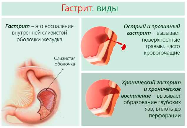 Список самых эффективных препаратов от гастрита: схема лечение медикаментами, что принимать при язве желудка