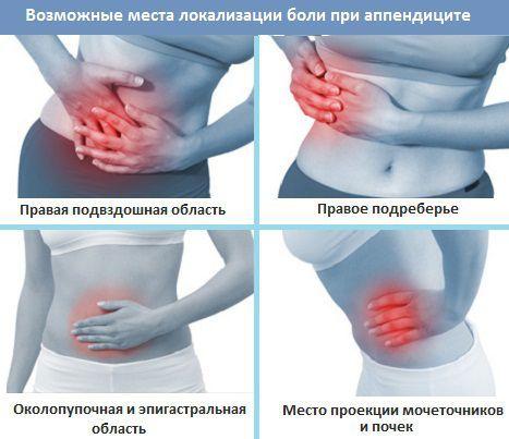 Признаки аппендицита у женщин, симптомы – как определить, где находится аппендицит?
