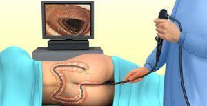 Метастазы рака прямой кишки