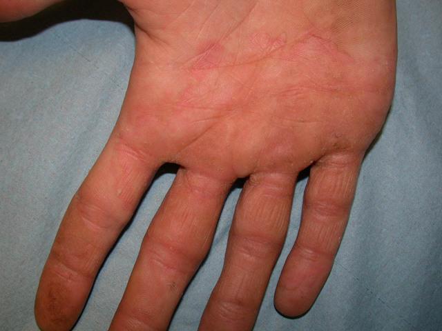 Грибок между пальцами рук – лечение