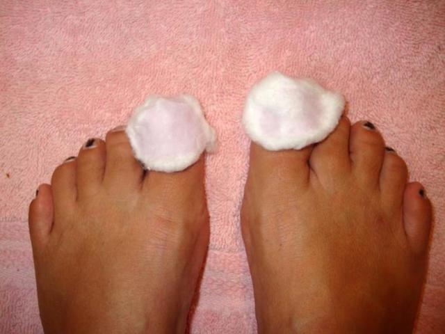 Лечение грибка ногтей перекисью водорода в запущенной форме по Неумывакину