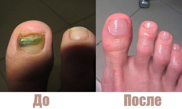 Микодерил от грибка ногтей: инструкция по применению