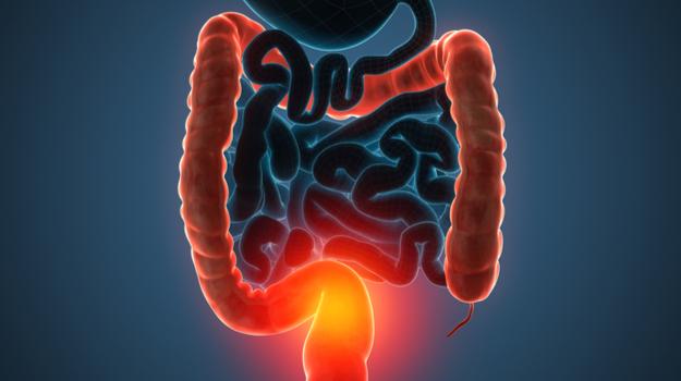 Язвенный колит: симптомы и лечение няк у взрослых, неспецифический язвенный колит кишечника, что это такое, как лечить болезнь, что делать при обострении