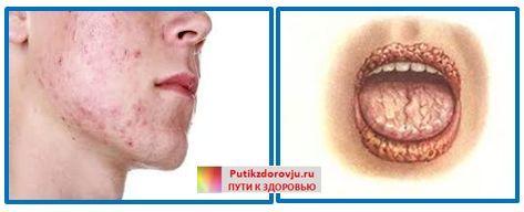 Грибок в организме человека: симптомы, признаки и лечение