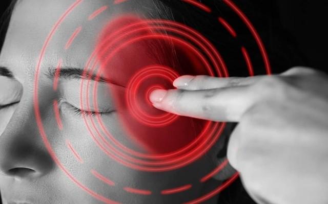 Мигрень у женщин: симптомы, лечение и причины