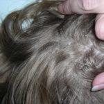 Псориаз: причины возникновения, симптомы и как лечить чешуйчатый лишай