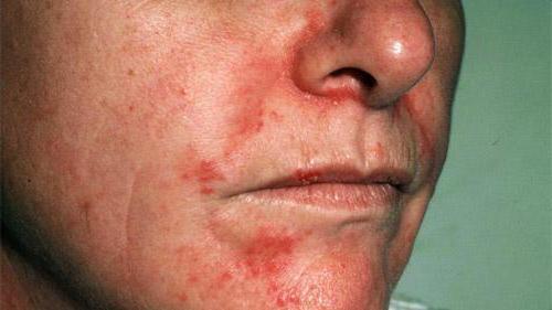 Список лучших мазей от дерматита на лице