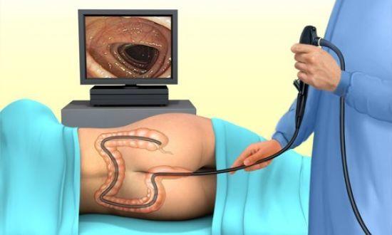 Наиболее достоверные методы диагностики кишечника