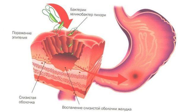 Прополис при гастрите желудка: как принимать?