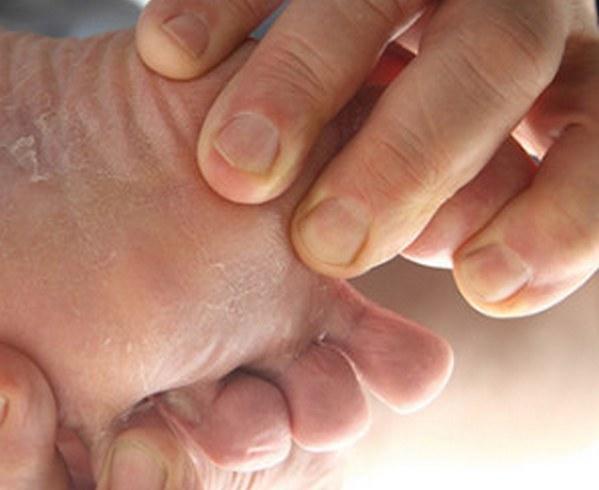 Чем лечить грибок на ногах у ребенка