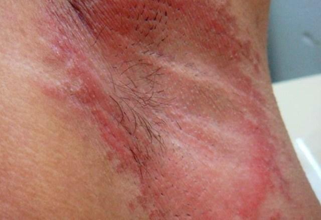 Красные пятна под мышками: причины, фото, что это и как лечить