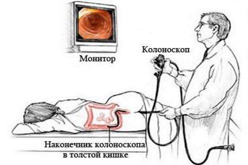 Заболевания толстой кишки, их симптомы, лечение и виды