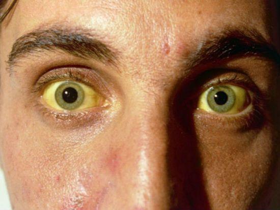 Цирроз печени у людей: симптомы, фото больных, как выглядит человек при заболевании