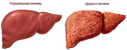 Симптомы и лечение диффузных изменений печени и поджелудочной железы