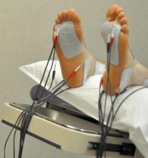 Полинейропатия конечностей – что это, симптомы, лечение