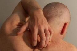 Сыпь при гепатите