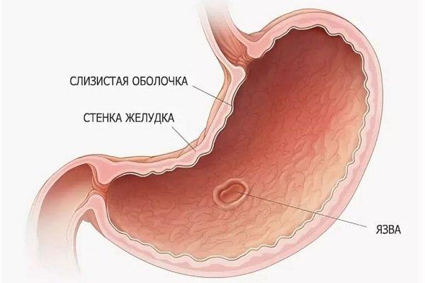Признаки язвы желудка: первые симптомы