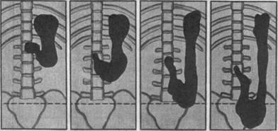 Гастроптоз (опущение желудка)