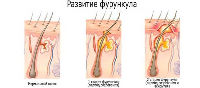 Фурункул на грудине у женщин: причины и лечение