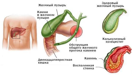 Рвота желчью: причины и лечение