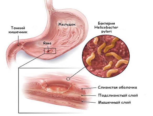 Жжение в желудке: причины и лечение