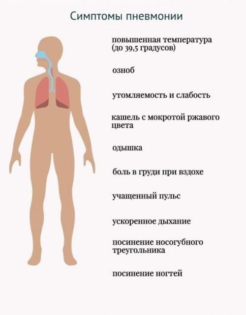 Тошнота после гриппа: остаточное явление или симптом осложнения