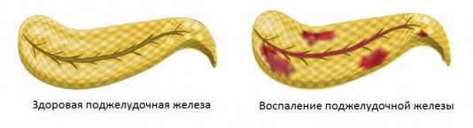 Роль поджелудочной железы в организме человека: симптомы заболеваний и лечение