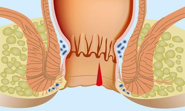 Диета При Геморрое И Анальных Трещинах. Диета при геморрое и трещинах заднего прохода: лечебные эффекты
