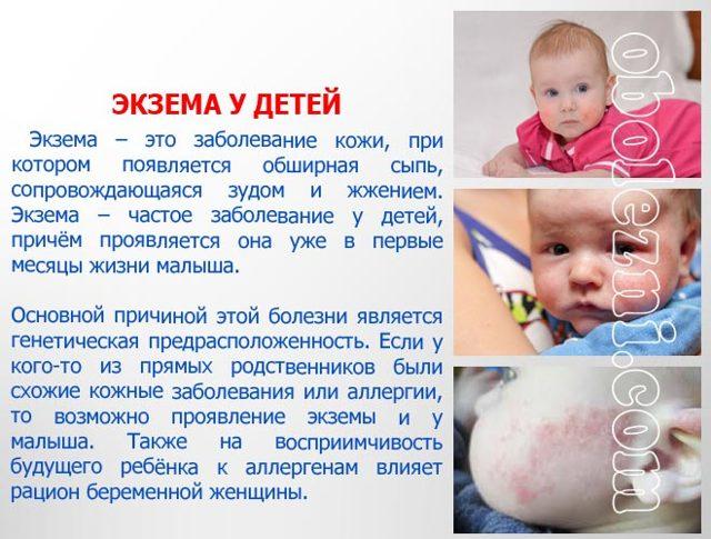 Экзема на попе у ребенка фото