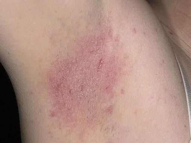 Лечение дерматита на ногах: фото, симптомы, причины, народные средства и профилактика