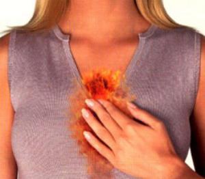 От чего бывает изжога и что с ней делать - причины, лечение, препараты и народные средства