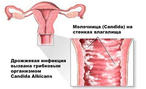 Молочница при грудном вскармливании чем лечить
