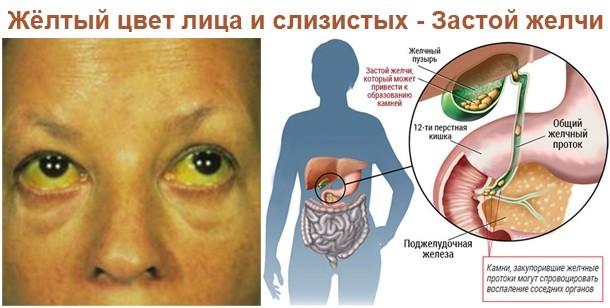 Застой желчи - причины, симптомы, диагностика, лечение