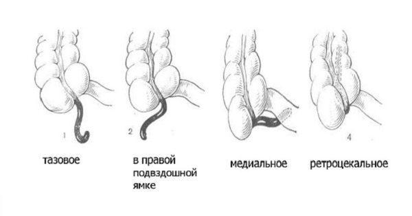 Аппендицит у детей 3, 4, 5, 6 лет: признаки и симптомы, операция