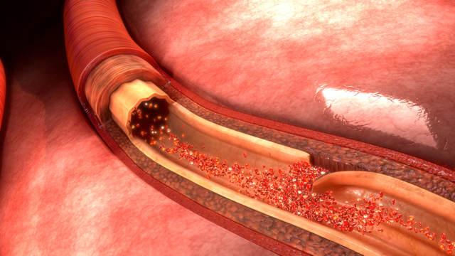 Синдром дырявого кишечника