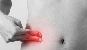 Терминальный илеит: симптомы, лечение