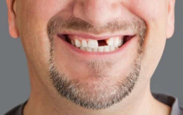 Рак полости рта - симптомы начальной стадии, диагностика, фото