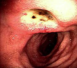 Симптомы язвы желудка и 12 перстной кишки: самые популярные причины и симптомы язвы