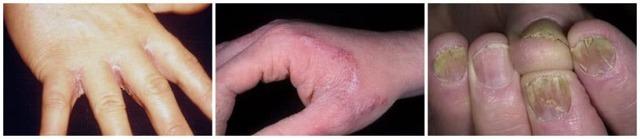 Грибок на руках - причины появления, симптомы, народные и медикаментозные средства лечения